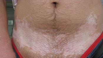 腰部白癜风该如何治疗
