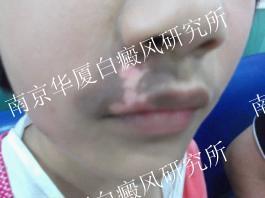 14岁南京男孩的康复故事