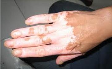 男性手部白癜风危害有哪些