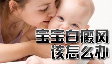 婴儿患者白癜风该如何治疗